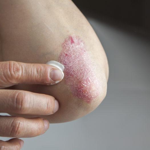Compounding No-Estéril para Dermatología